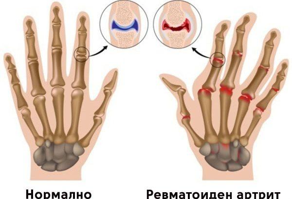 Ревматоиден-артрит