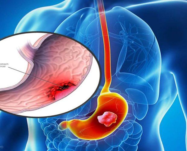 водород рак на стомаха